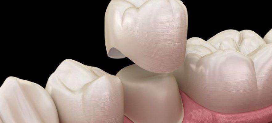 Керамическая коронка на имплант