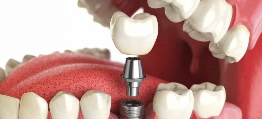 Зубные Имплантаты Nobel Speedy и Speedy Groovy