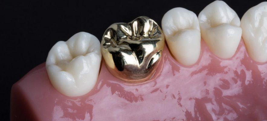 Цельнолитая коронка для зуба